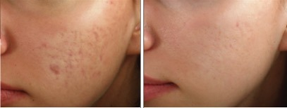 Steroid injections for acne scars nfl steroid policy