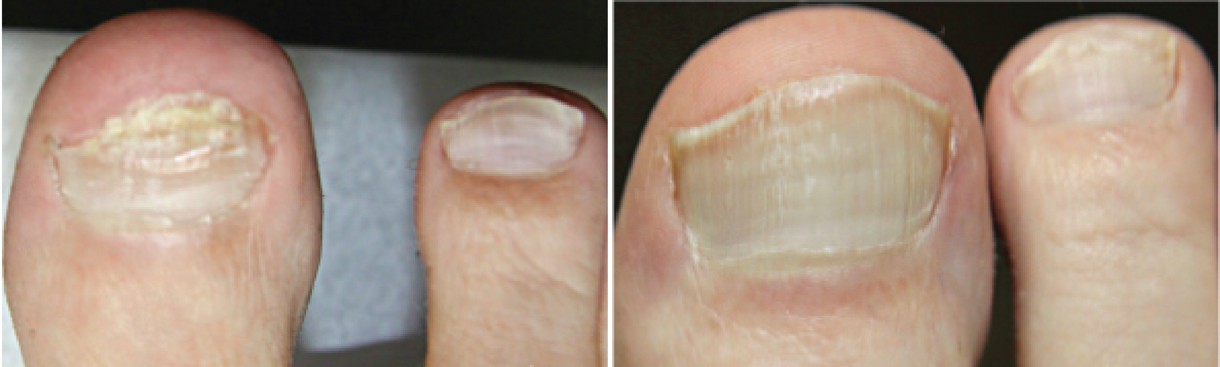 before and after of toe nail fungus large toes