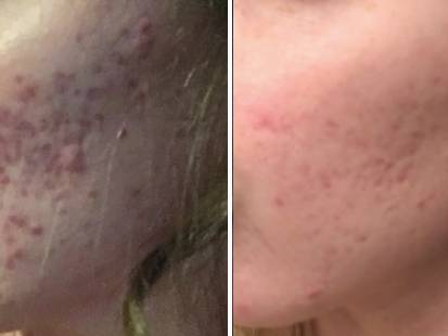 Isolaz procedure for acne before and after