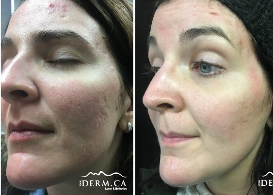 subcision_yourderm_before-after