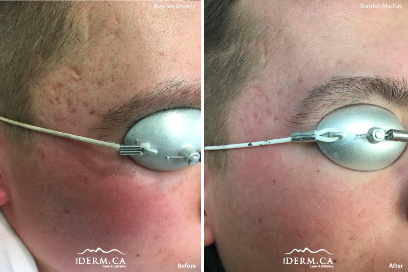 picosure-acne-scars-before-after