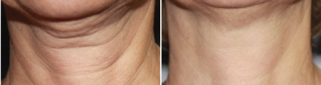 titan laser neck before and after