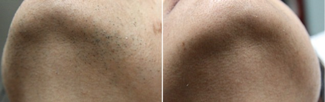 Hair removal before and after of chin area