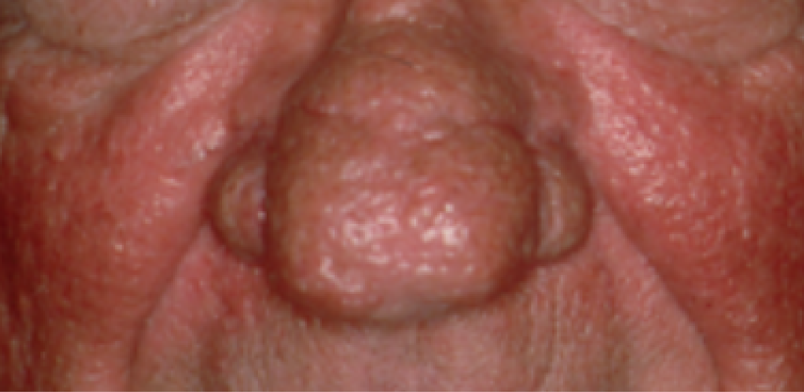 rhinophyma on males nose