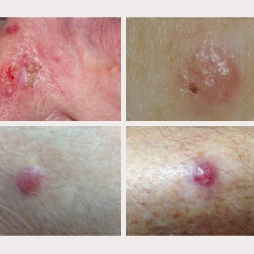 four images of Basal-cell-carcinoma