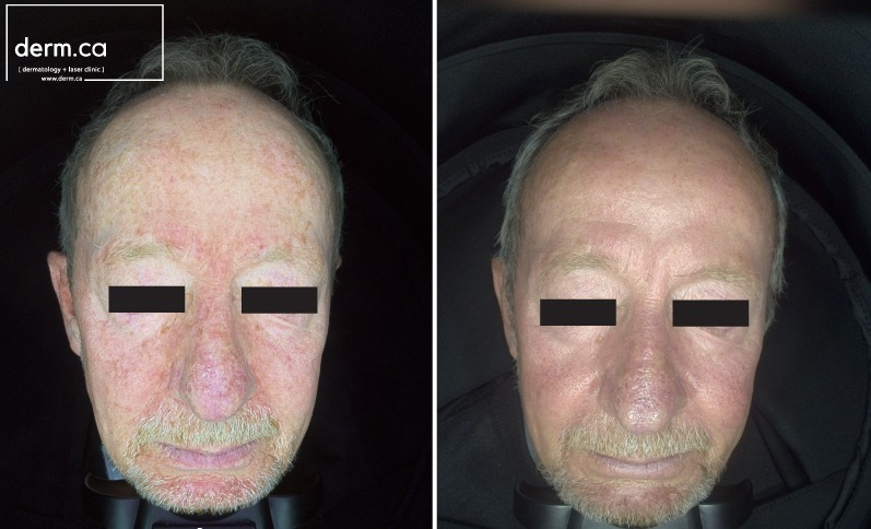 male with rosacea before and after